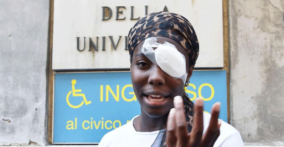 Daisy Osakue, la Procura di Torino apre l'inchiesta: non c'è l'aggravante razziale
