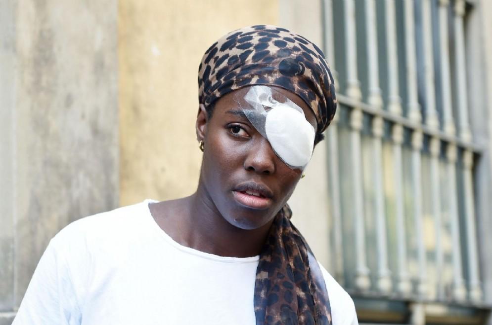 Daisy Osakue, la giovane atleta di origine nigeriana ferita ad un occhio da un uovo lanciato da un'auto in corsa a Moncalieri