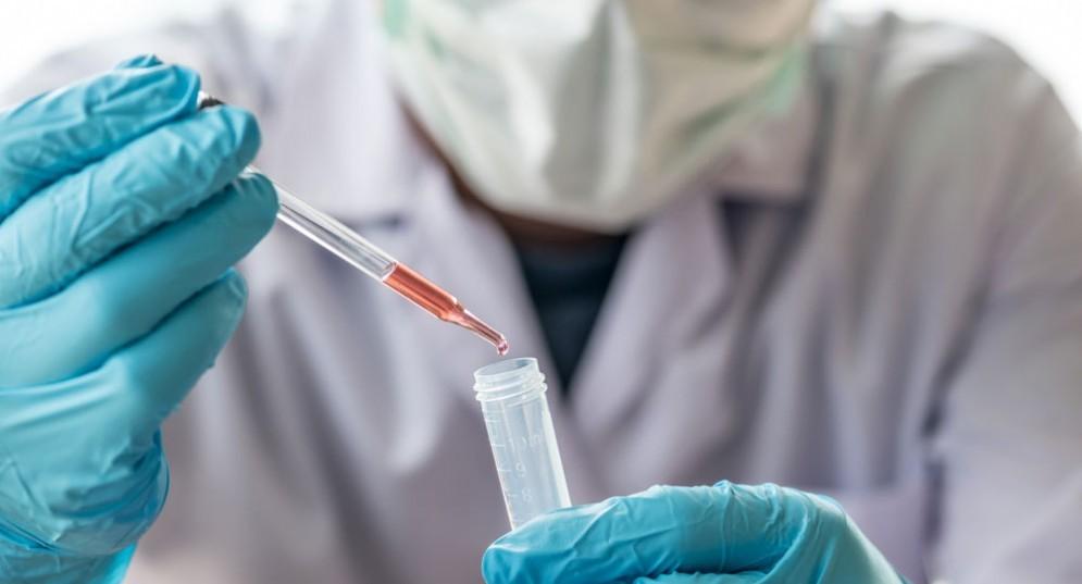 Test del sangue