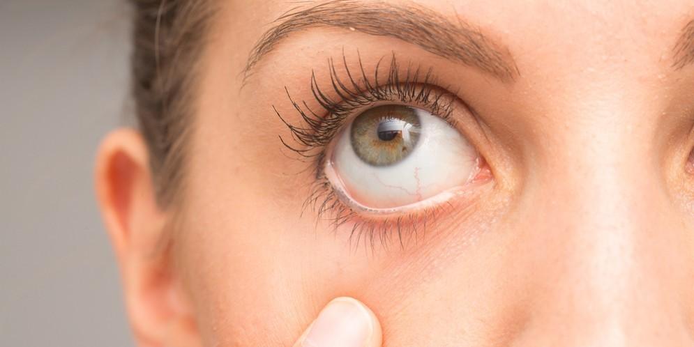 Occhi e malattie