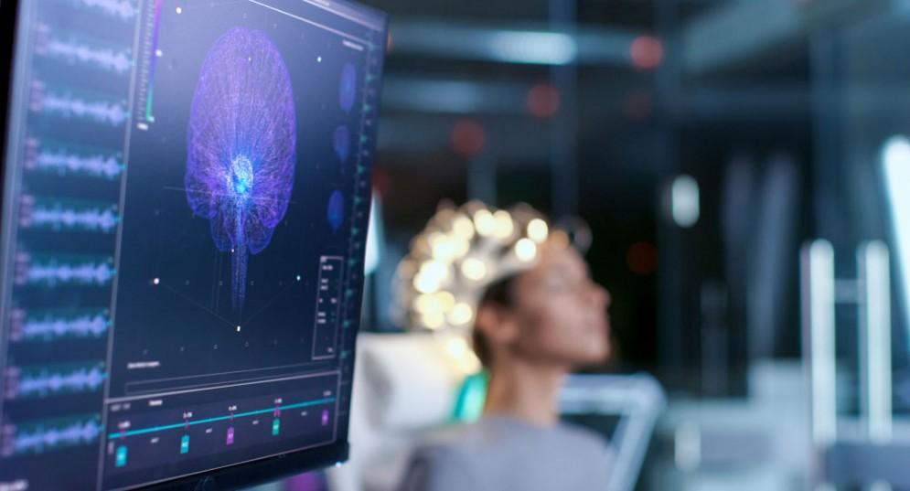 Sclerosi multipla e cervello