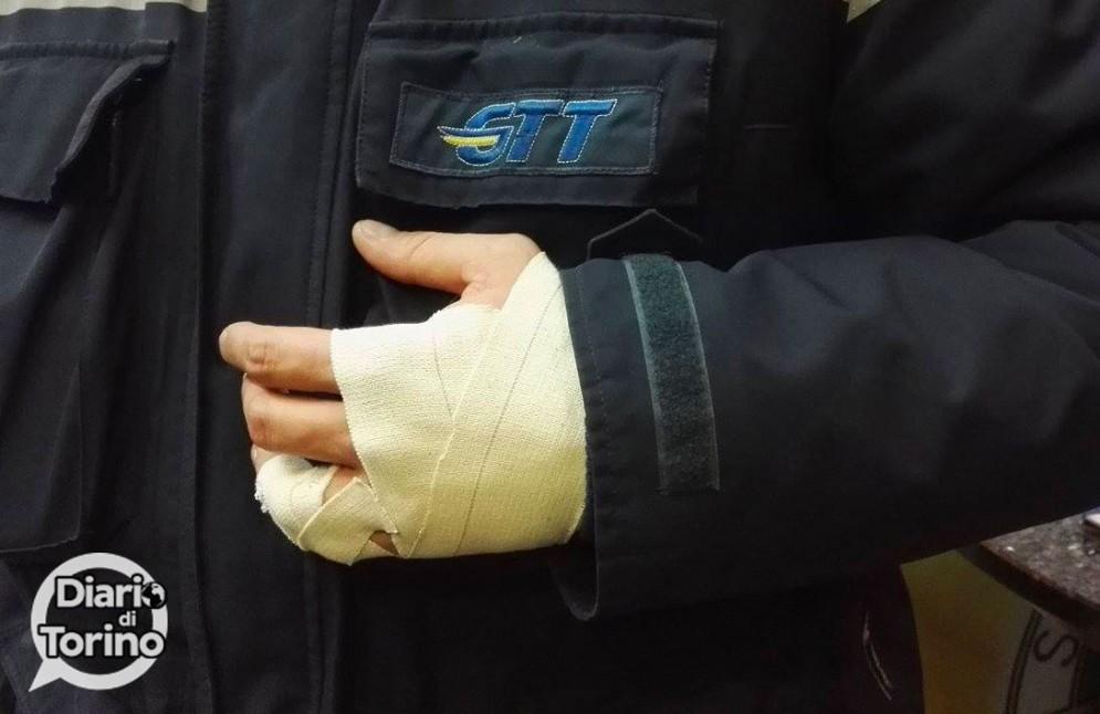 Il braccio ingessato di un controllore dopo un'aggressione
