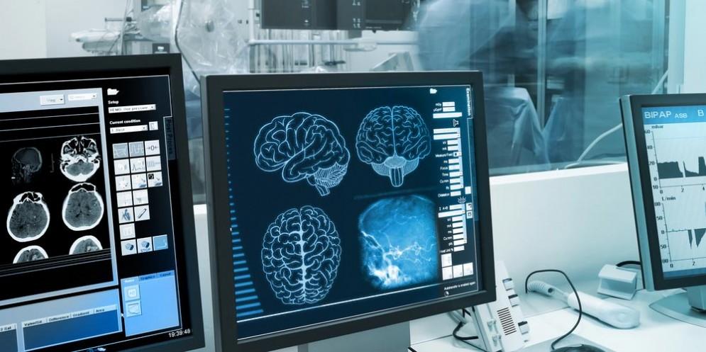 Cervello e glioblastoma