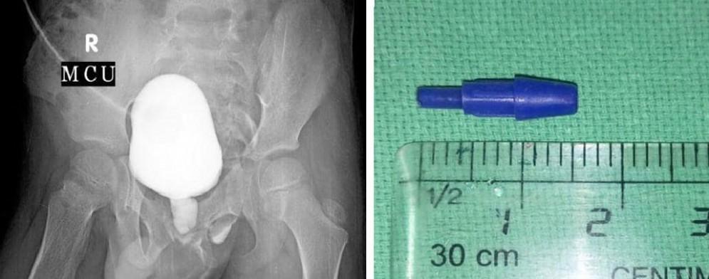 La punta della penna trovata nell'uretra