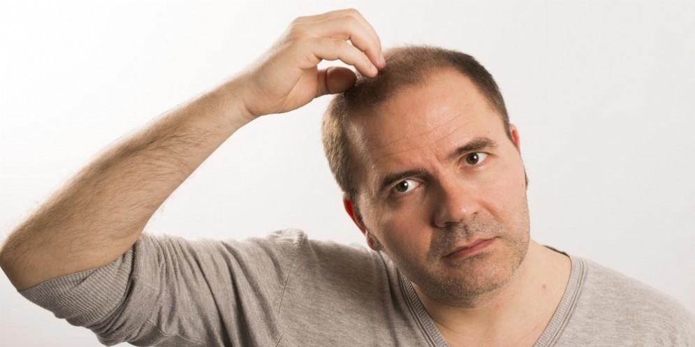 Caduta dei capelli e vitamina D