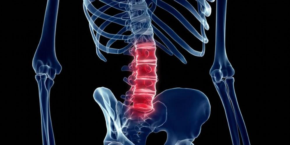 A Torino il robot che opera la colonna vertebrale