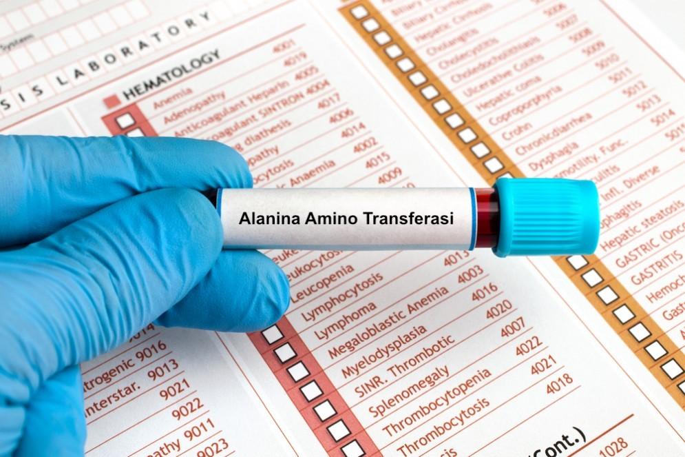 Valori di ALT Alanina Amino Transferasi