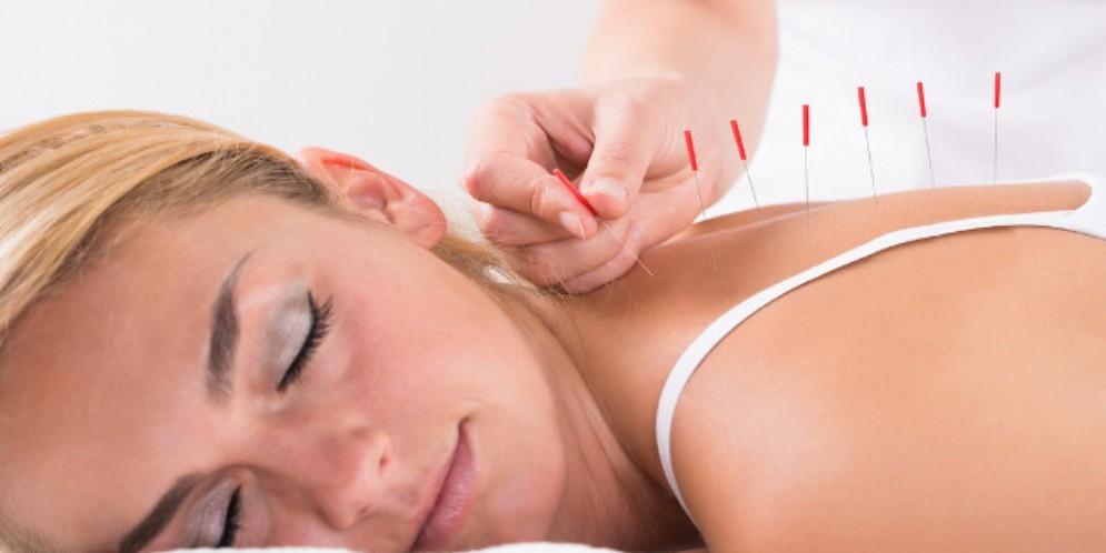 Donna vive 30 anni con gli aghi da agopuntura