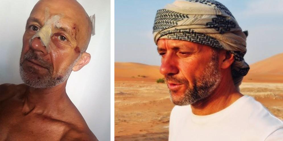 Travolto l'esploratore Calderan: il pirata della strada non si ferma a prestare soccorso