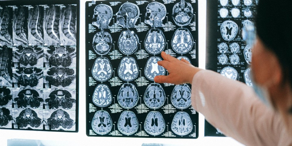Scoperto nuovo meccanismo di protezione dei neuroni